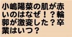 小嶋陽菜の肌が赤いのはなぜ!?輪郭が激変した?卒業はいつ?